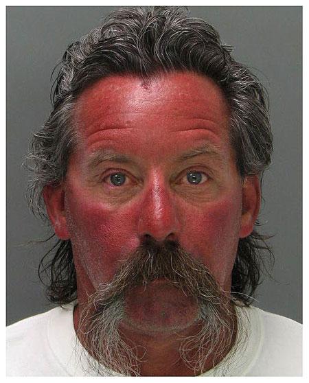 sunburn-mugshot.jpg